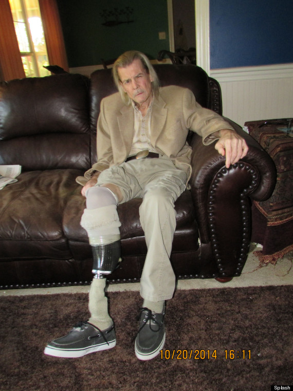 """EXCLUSIVE: """"Airwolf"""" star Jan-Michael Vincent tells how leg amputation nearly cost him his life"""